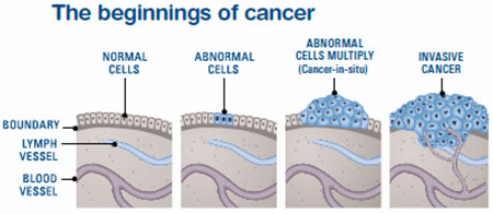 how cancer grows image