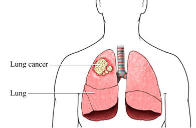 treatment of lungs cancer in homeopathy image