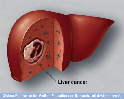treatment of liver cancer in homeopathy