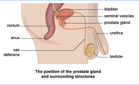 treatment of prostate cancer in homeopathy