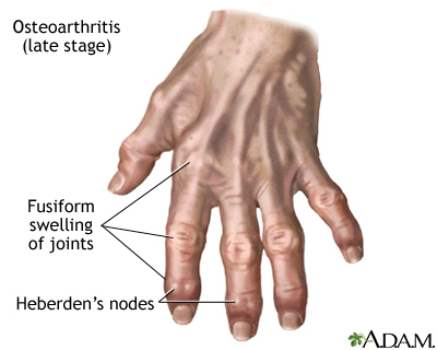 Osteoarthritis treatment in homeopathy image