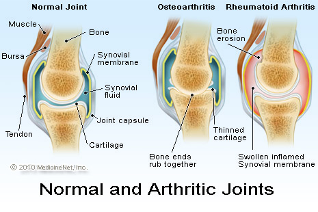 Rheumatoid arthritis explanation image