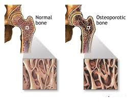 Homeopathic treatment of Osteoporosis in pakistan image