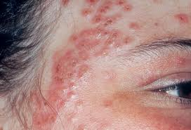 What is eczema image