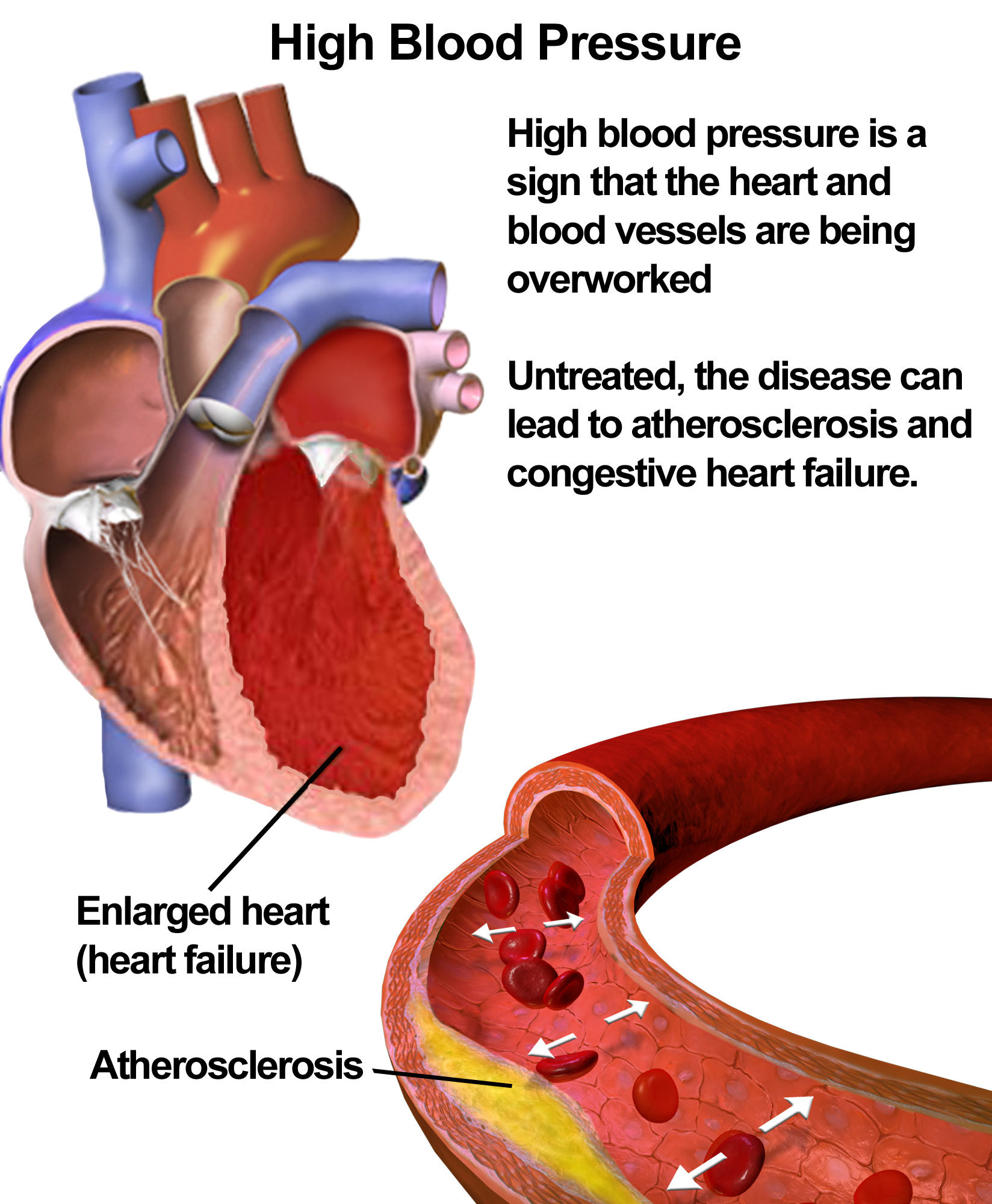 What is hypertension image