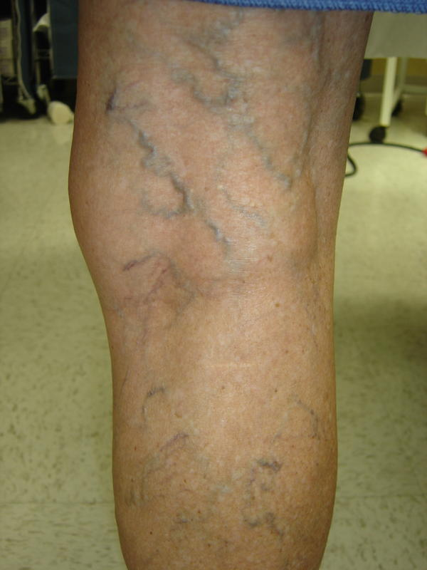 Blue colored varicose veins of foot image