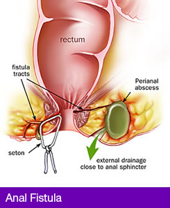 Treatment of Anal Fistula in Pakistan image
