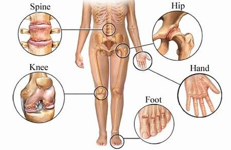 Arthritis Pain Points Image