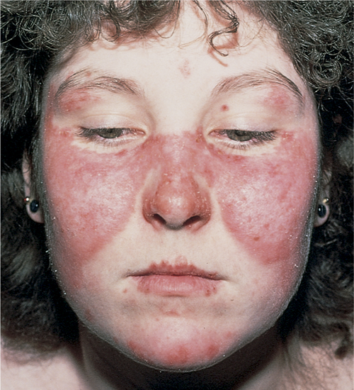 Signs and symptoms of Butterfly Rash or Lupus