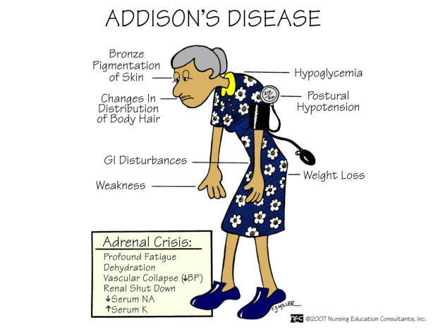 What is Addison Disease?