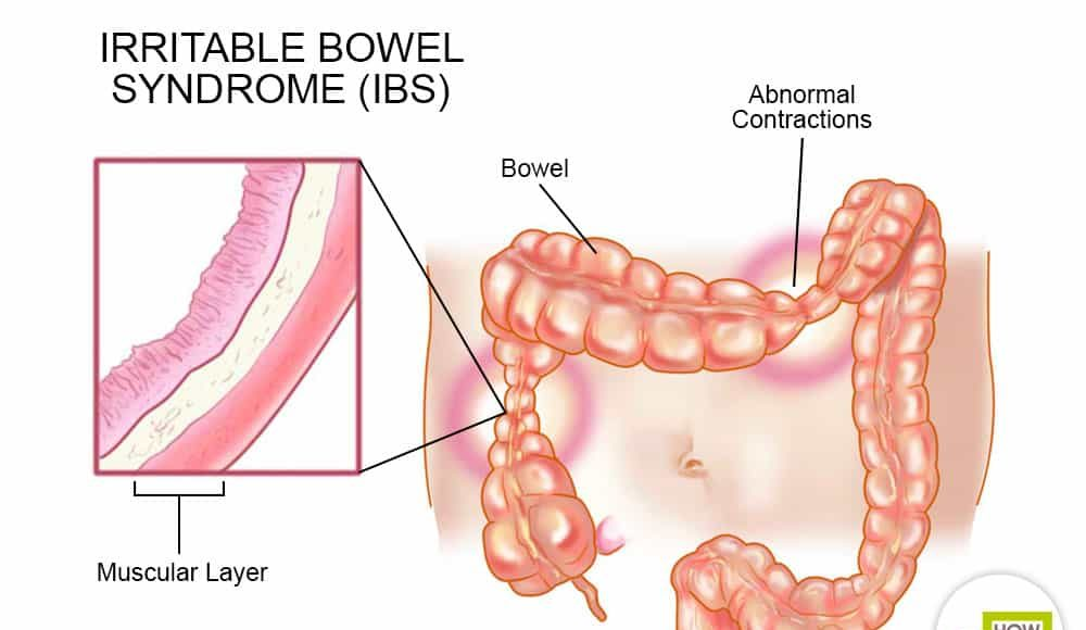 IBS Sabeel homeopathic treatment