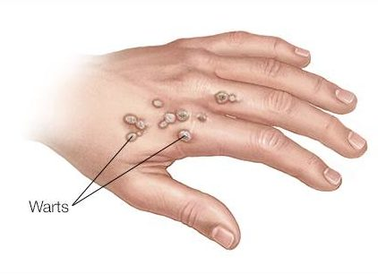 sabeel homeopathic treatment of warts