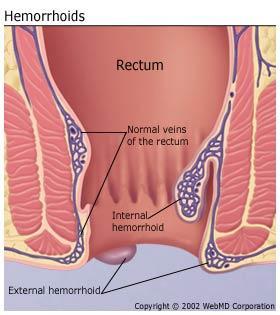 dr-sabeel-online-homeo-clinic-hemorrhoids-image